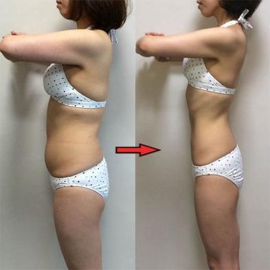 【3食付き】内臓脂肪撃退!脂肪燃焼プログラム14泊15日